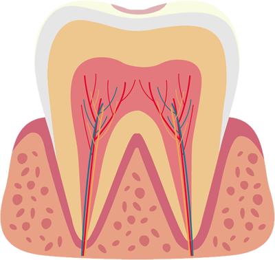 ごく初期の虫歯(C0)
