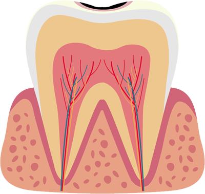 表面の虫歯(C1)