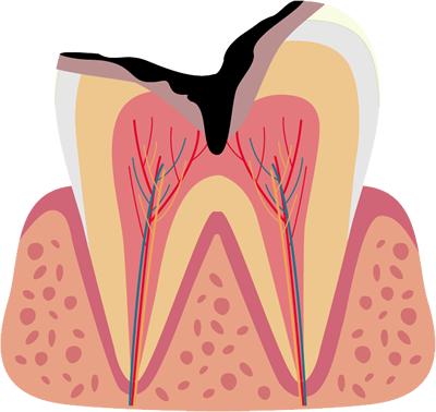 神経に達した虫歯(C3)