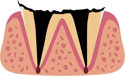 歯の根に達した虫歯(C4)