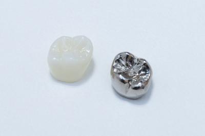 メタルフリーの虫歯治療<