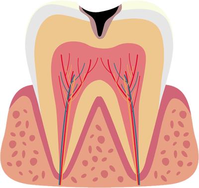 虫歯治療(一般歯科)