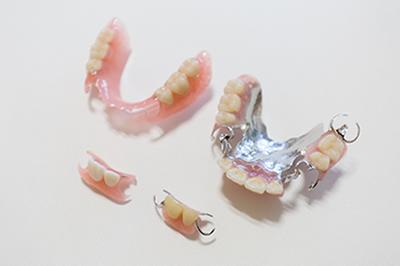 失った歯の治療(ブリッジ、入れ歯)